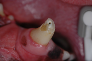 Broken canine tooth with pulp exposure.